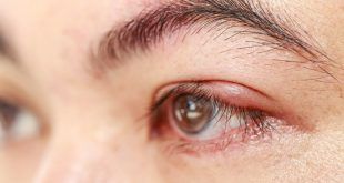 Laserová operácia sivého zákalu vás zbaví ochorenia aj dioptrií