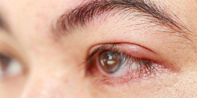 , Laserová operácia sivého zákalu vás zbaví ochorenia aj dioptrií